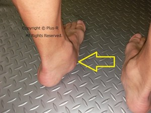 有痛性外脛骨など靴トラブルが増える時期。