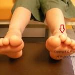 子どもの浮きゆびと新型コロナウィルスの今後の影響。