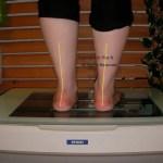 外反扁平と有痛性外脛骨の相性の悪さ。