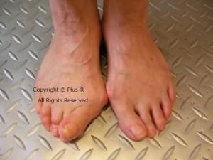 外反母趾と市販靴の加工。