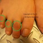 足のゆびにタコができる原因は...。