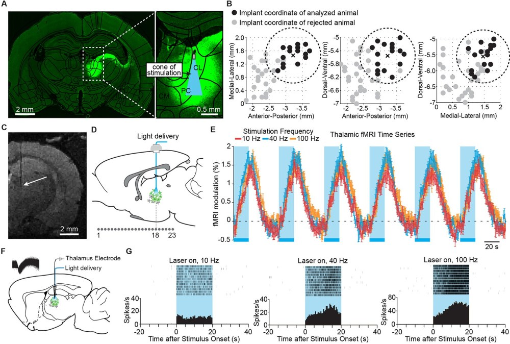 medium resolution of targeted stimulation of central thalamus evokes positive bold changes and increases in neuronal firing at the site of stimulation