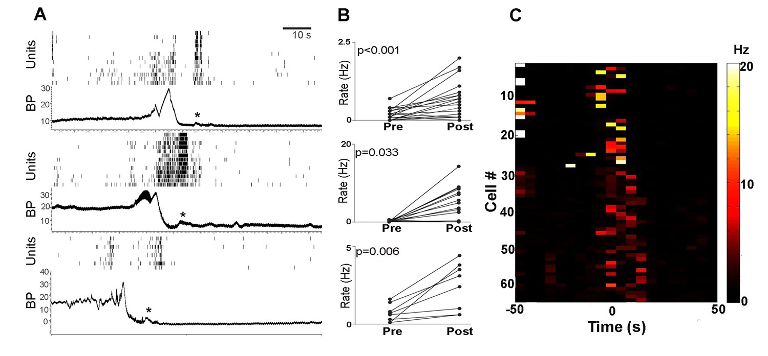 hight resolution of pmc neuronal activity of each rat