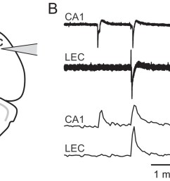 picrotoxin triggered changes in gcamp6f fluorescence intensity correspond to stereotypical epileptiform field potentials  [ 1500 x 843 Pixel ]