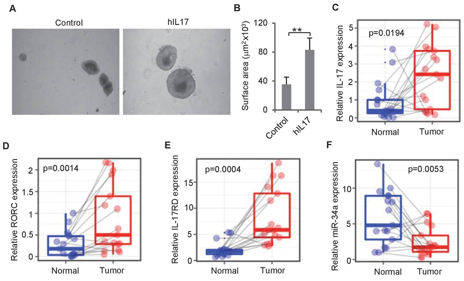 hight resolution of il 17 and mir 34a expression in human crc