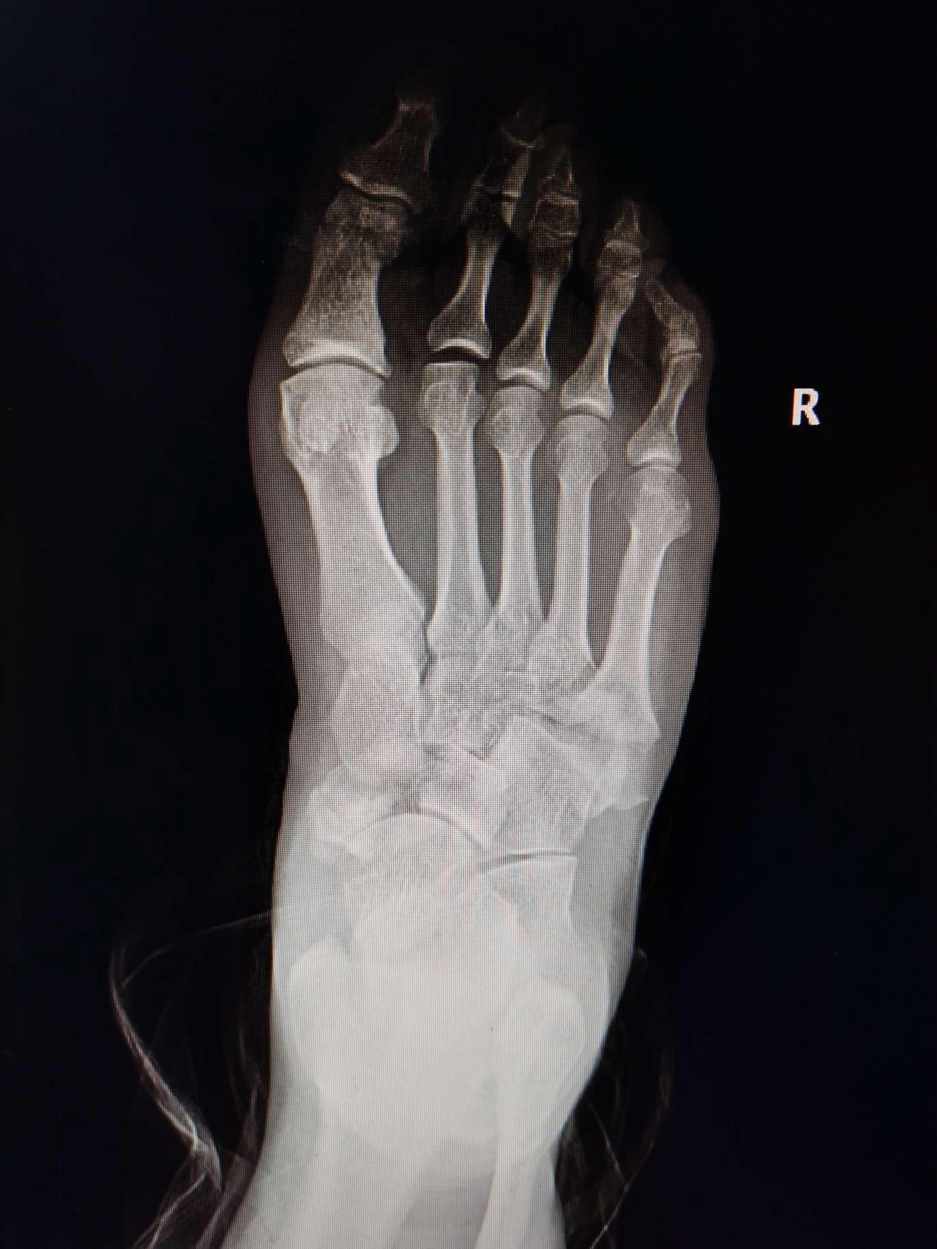 一例足舟骨第五跖骨基底粉碎性骨折的治療 - 病例中心(診療助手) - 愛愛醫醫學網