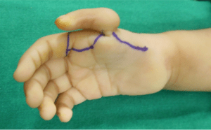 Figure 5: Buck Gramcko type markings for palmar side