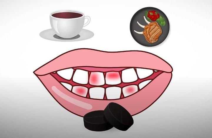 להלבין שיניים באופן טבעי
