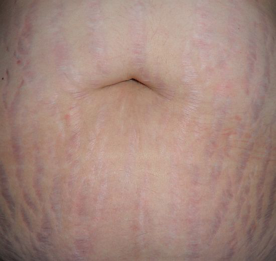 Stretch Marks on Stomach Pictures – 33 Photos & Images ...