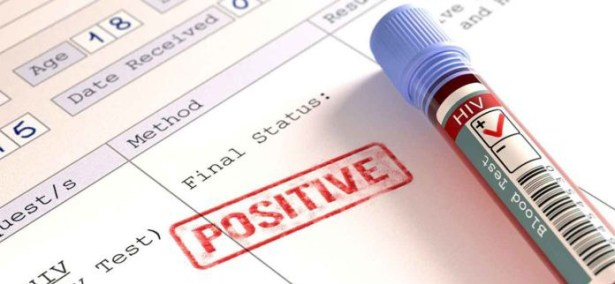 HIV Positive student of Ghana University gives reason for spreading it on campus