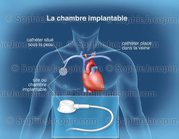 CHAMBRE IMPLANTABLE  Illustration Medicale  Didactique