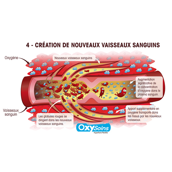 processus-oxygen-oxysoins-hyperbarre-web-04 creation-nouveaux vaisseaux-sanguins, Nancy, fournier, illustration