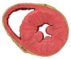 Cardiomiopatia