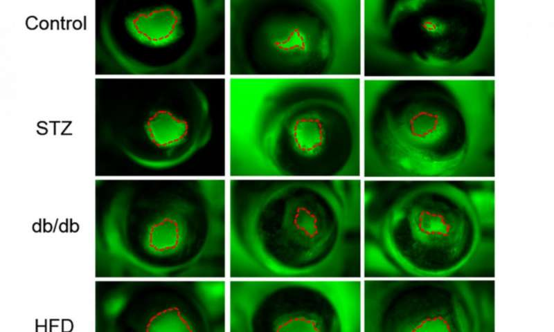 I ricercatori della UC Davis hanno misurato i campi elettrici e la guarigione delle ferite negli occhi da tre diversi modelli di diabete. Da sinistra a destra, la fluorescenza verde mostra zona danneggiata e la contrazione nel corso del tempo. Fila in alto, gli occhi di topi normali. Altre righe sono gli occhi di tre diversi modelli murini di diabete. Credit: Zhao Min e Brian Reid, UC Davis