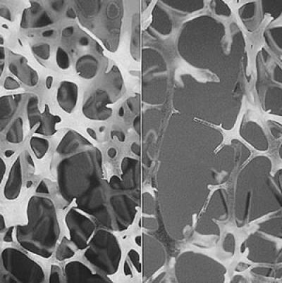 1-osteoporosis