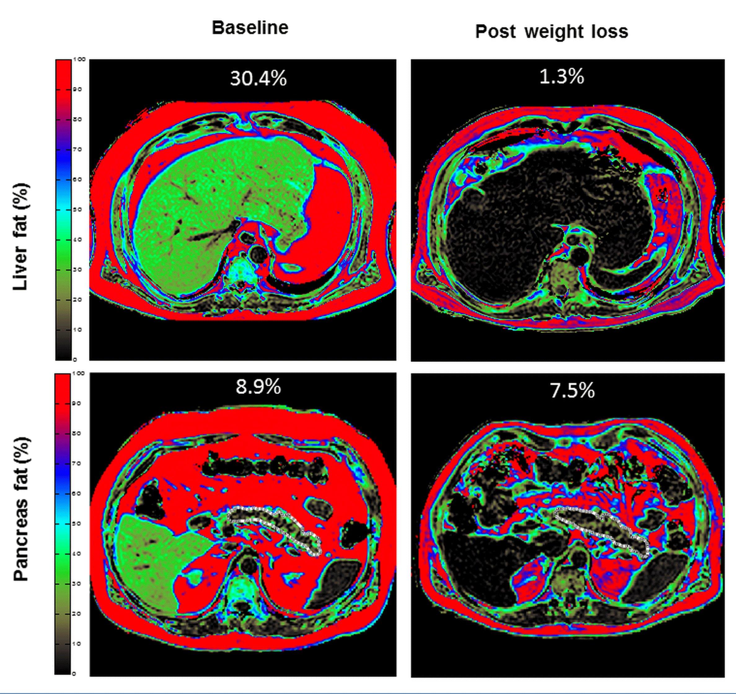 rapida perdita di peso e malattia del fegato