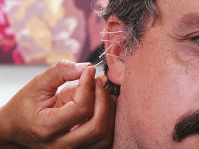 acupuncturea