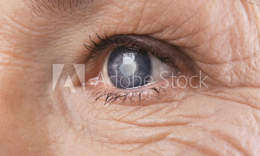 Senior woman face with wrinkles, closeup