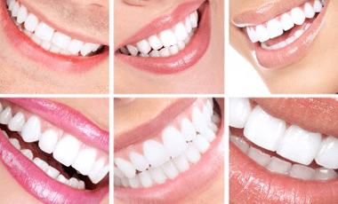 8 Ways to Get a Better Smile