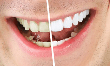 Get Healthier, Whiter Teeth — the Safe Way