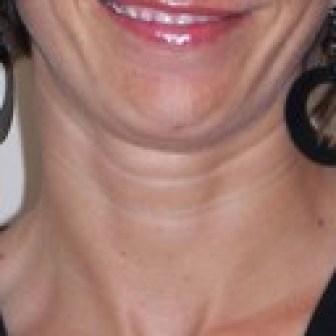 eliminate neck wrinkles