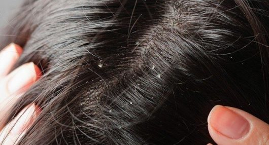 Scalp dandruff issue