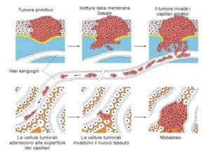 Terapie anti-tumorali: metastasi