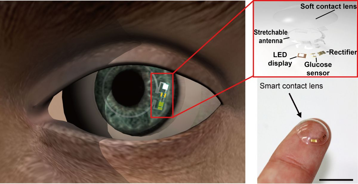 Smart Contact Lenses Could Screen for Pre-Diabetes and Monitor Glucose Levels