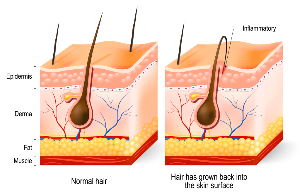 Illustration of Ingrown Hair
