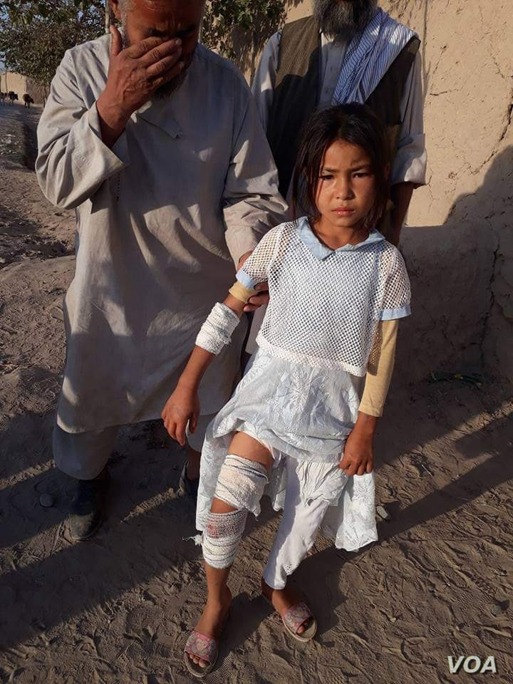 Pic 5: Masuda Ozbek, 10, was injured in the mortar attack that left her twin sister dead in Afghanistan last year. (Photo Courtesy of her father, Abdul Kareem Ozbek)