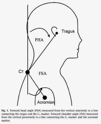 Imagen 5. Medición de la protracción de cabeza y hombros (Thigpen et al., 2010). Extraída del blog Temadeporte de Ignacio González Za