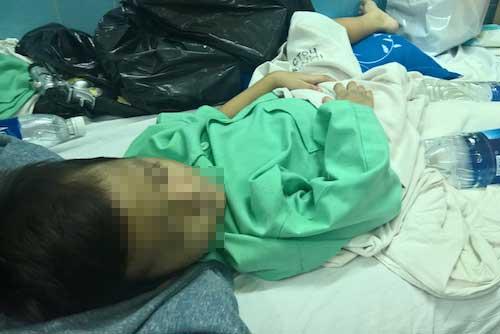 """Bé 5 tuổi bị cha mẹ đánh gãy chân: """"Con thương ba lắm"""" - 2"""