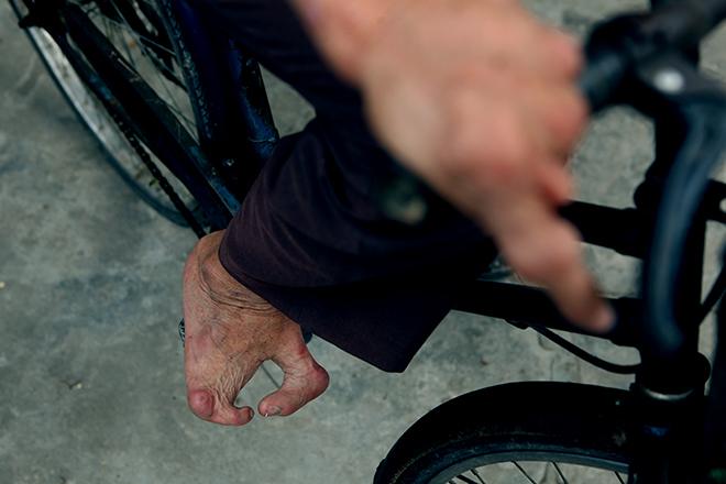 Kì lạ gia đình tay một ngón, chân như chân chim ở Hà Nam - 7