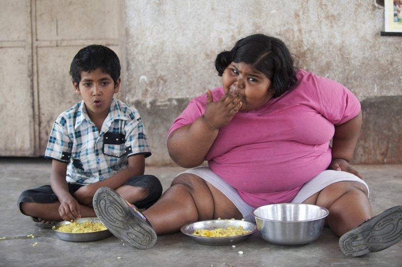 兒童也得脂肪肝!世界肥胖聯盟:2025年全球過重兒童達2億6800萬-風傳媒