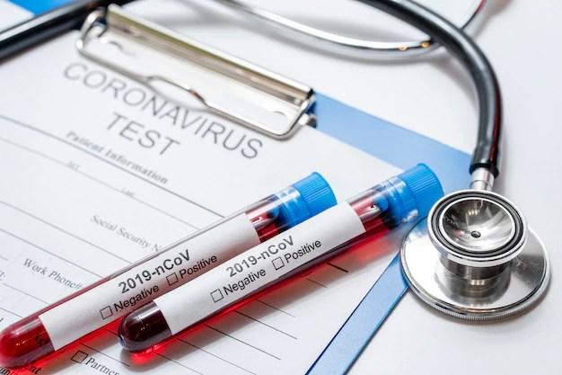 Amostras médicas de infecção de coronavirus