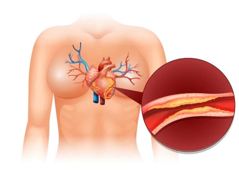 cardio vascular disease
