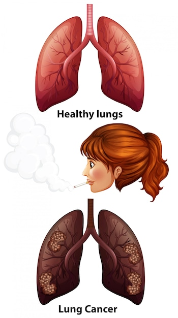women smoking with healthy