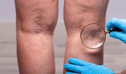 aderontsteking flebitis