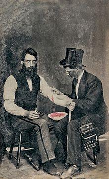 Foto tahun 1860: bekam di barat