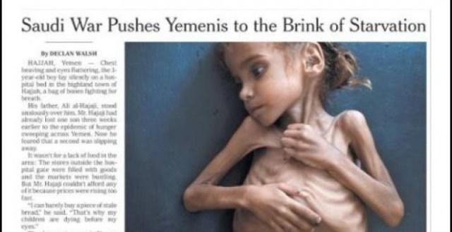 """Yemen, un """"infierno en vida"""" para todos los niños"""