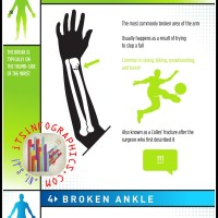 Our 5 most commonly broken bones