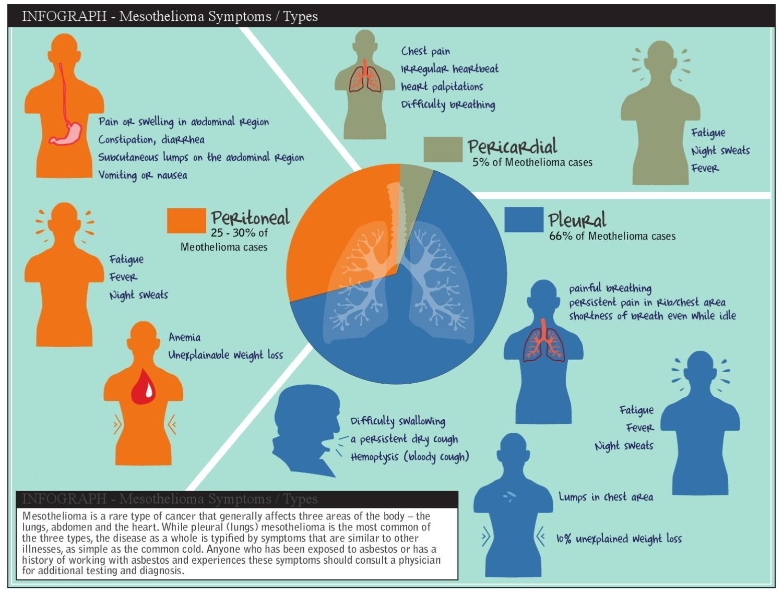 mesothelioma symptoms by royal