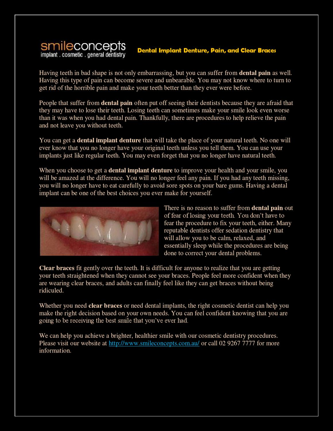 How To Make Your Own Braces : braces, Dental, Implant, Denture,, Pain,, Clear, Braces, Smile, Concepts, Issuu
