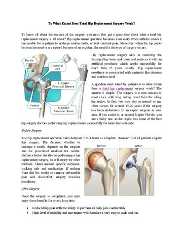 To what extent does total hip replacement surgery work by ...