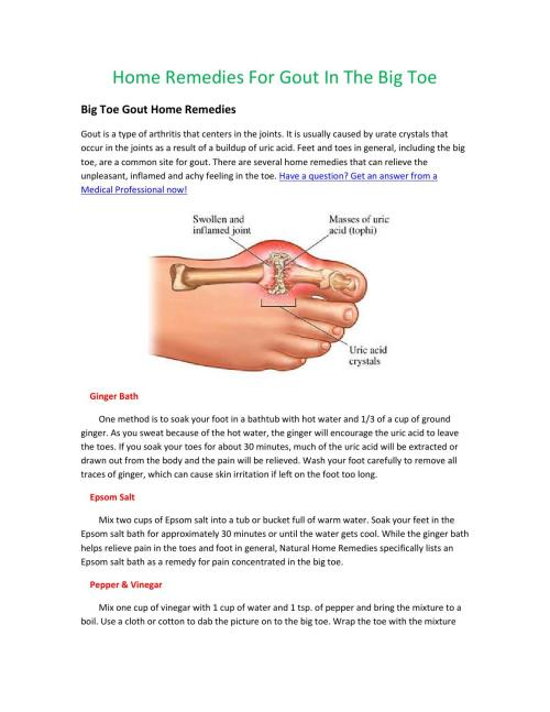 small resolution of diagram of big toe pain