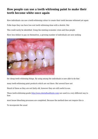 How To Paint Teeth : paint, teeth, People, Teeth, Whitening, Paint, Their, Become, White, Again, Tartleash4957, Issuu