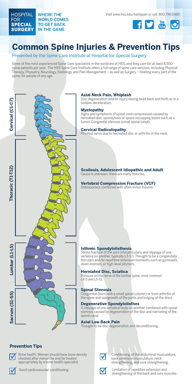 medium resolution of hss common spine injuries prevention tips infographic