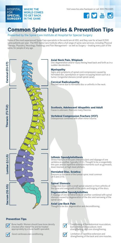 small resolution of hss common spine injuries prevention tips infographic