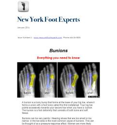new york foot experts january newsletter bunions [ 1156 x 1496 Pixel ]