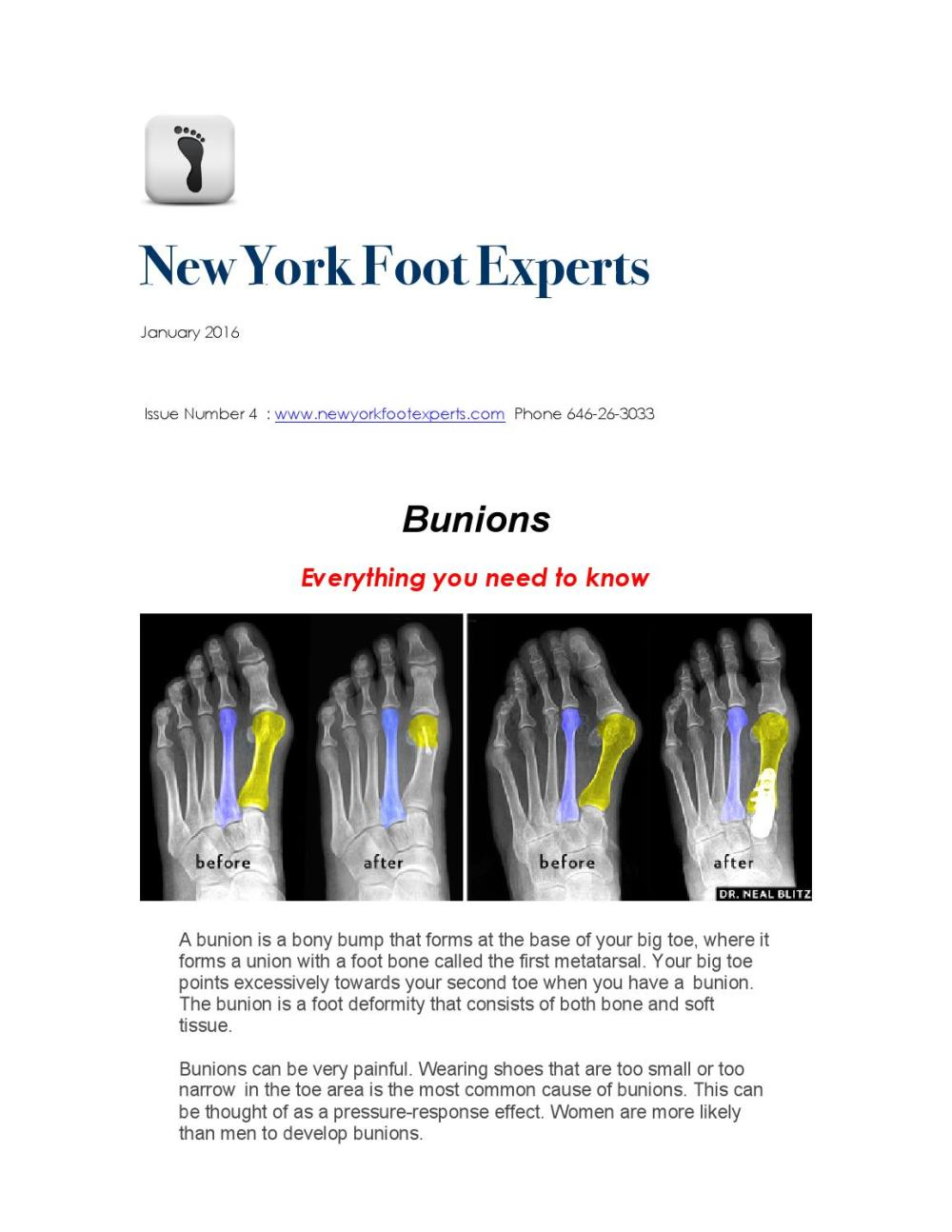 medium resolution of new york foot experts january newsletter bunions